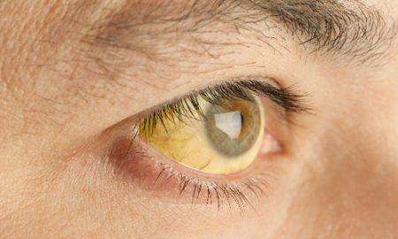 желтые склеры при гепатите