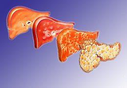 4 стадии фиброза печени