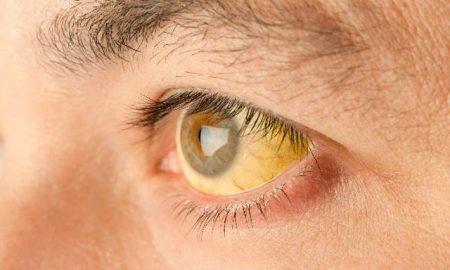 пожелтевшие склеры глаз