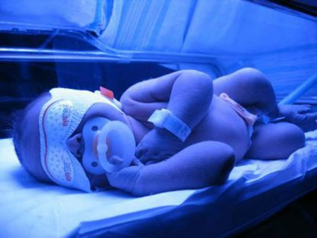 фототерапия желтухи младенцам