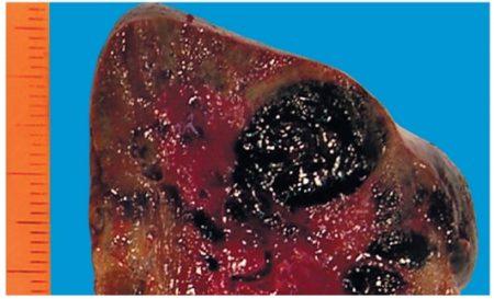 Кавернозная гемангиома печени