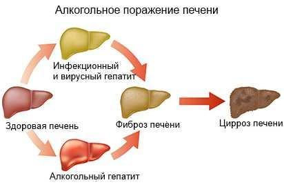 цироз печени