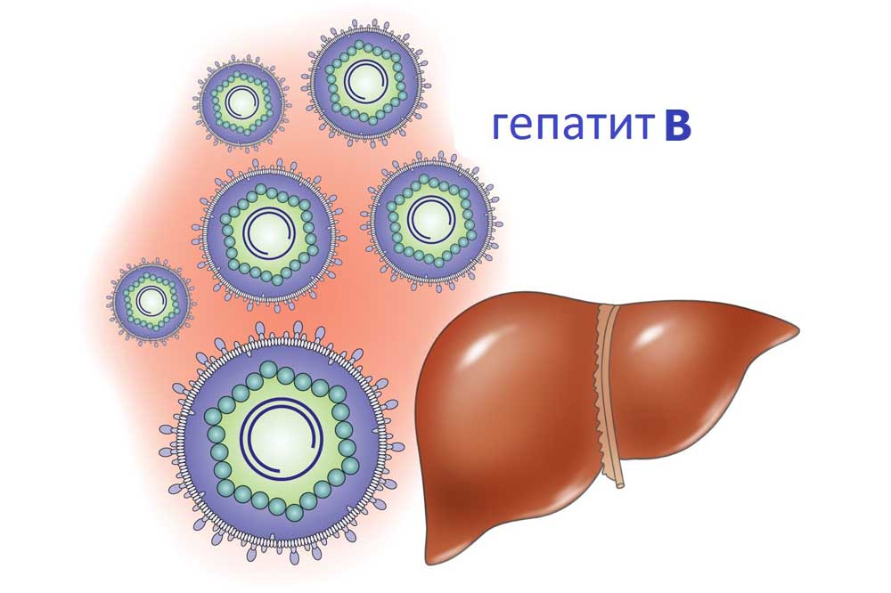 3 стадия гепатита