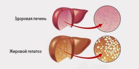 Стеатогепатоз печени