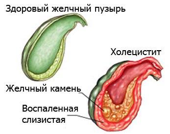холицестит
