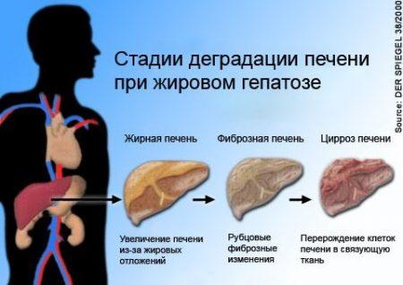 жировой гепатоз стадии