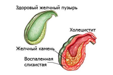 Лекарства при холецистите и панкреатите