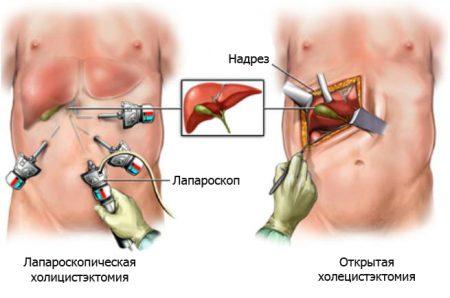 лапароскопическая холицистэктомия